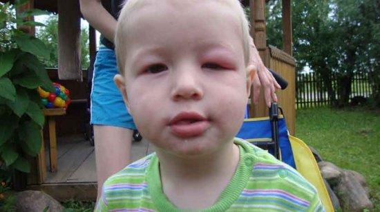 Отек после укуса осы у ребенка