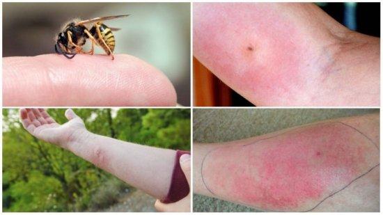 Аллергия после укуса осы