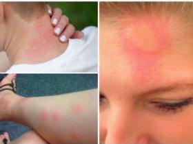 Аллергия на укус комаров